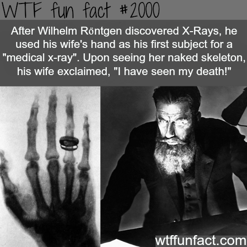 Wilhelm Rontgen, X-Rays discoverer and his wife – WTF fun facts